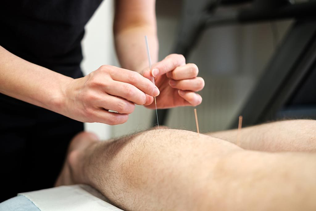 physiotherapist performing acupuncture for musculoskeletal conditions